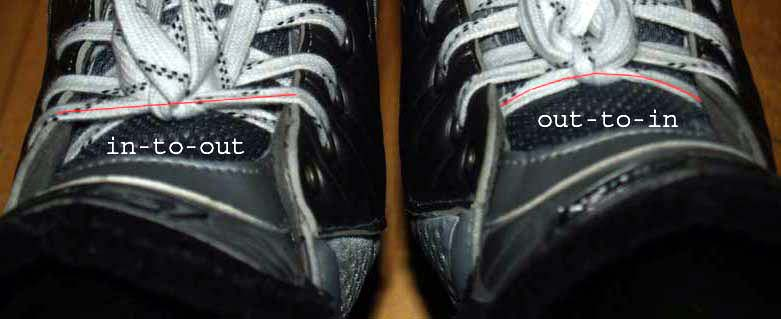 Lace Bite Cure for Hockey Players: The Ultimate Guide